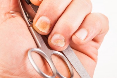 Treating nail fungus with vinegar - DYC